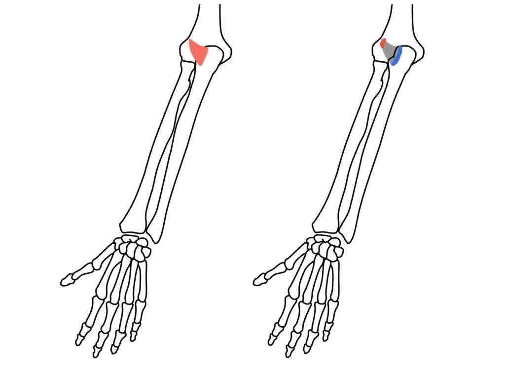 肘筋(ちゅうきん)の起始と停止