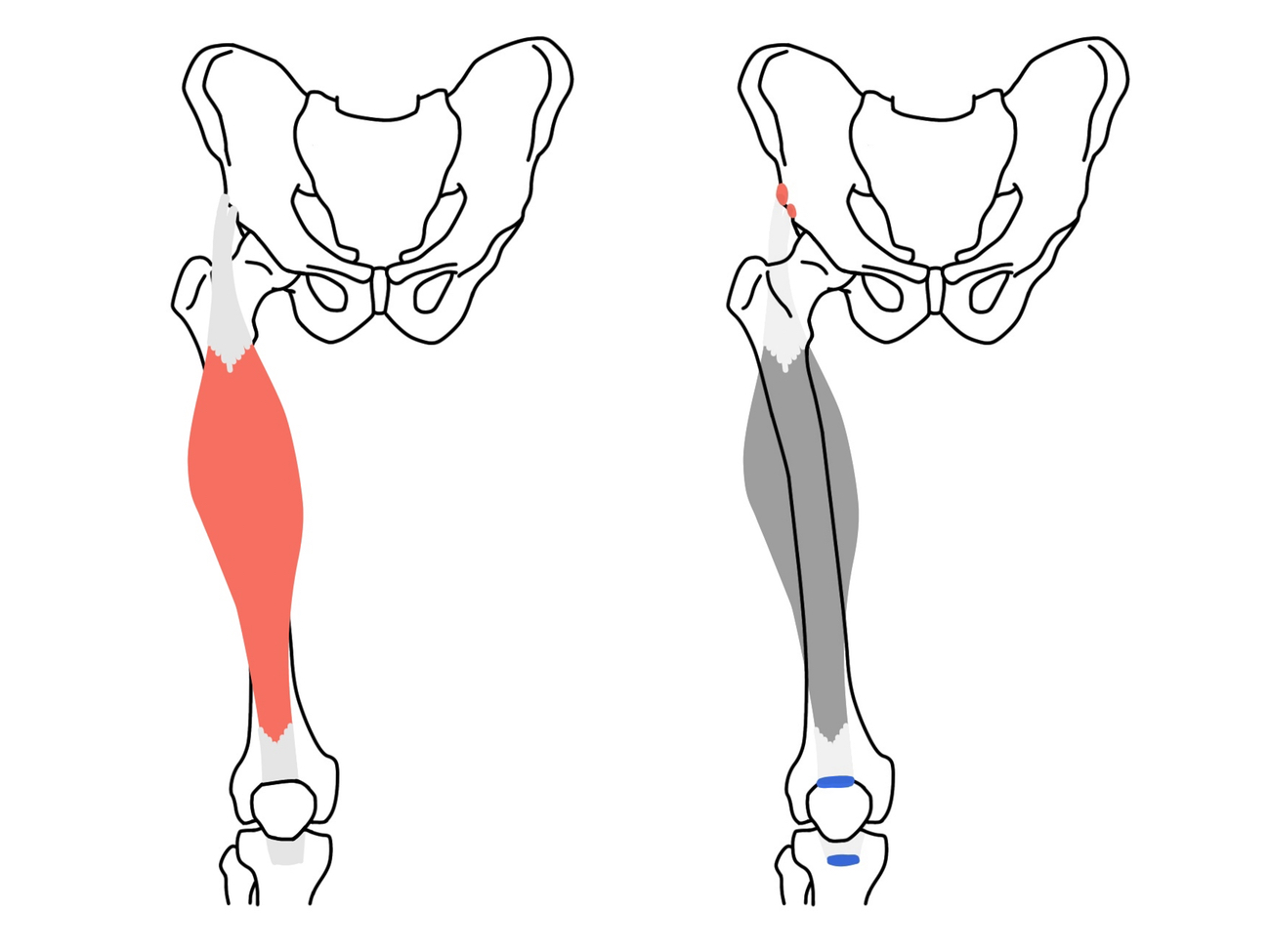 太腿前面の筋肉