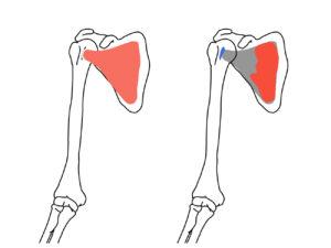 肩甲下筋(けんこうかきん)の起始と停止