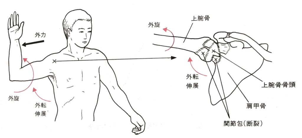 肩関節の脱臼ポジション
