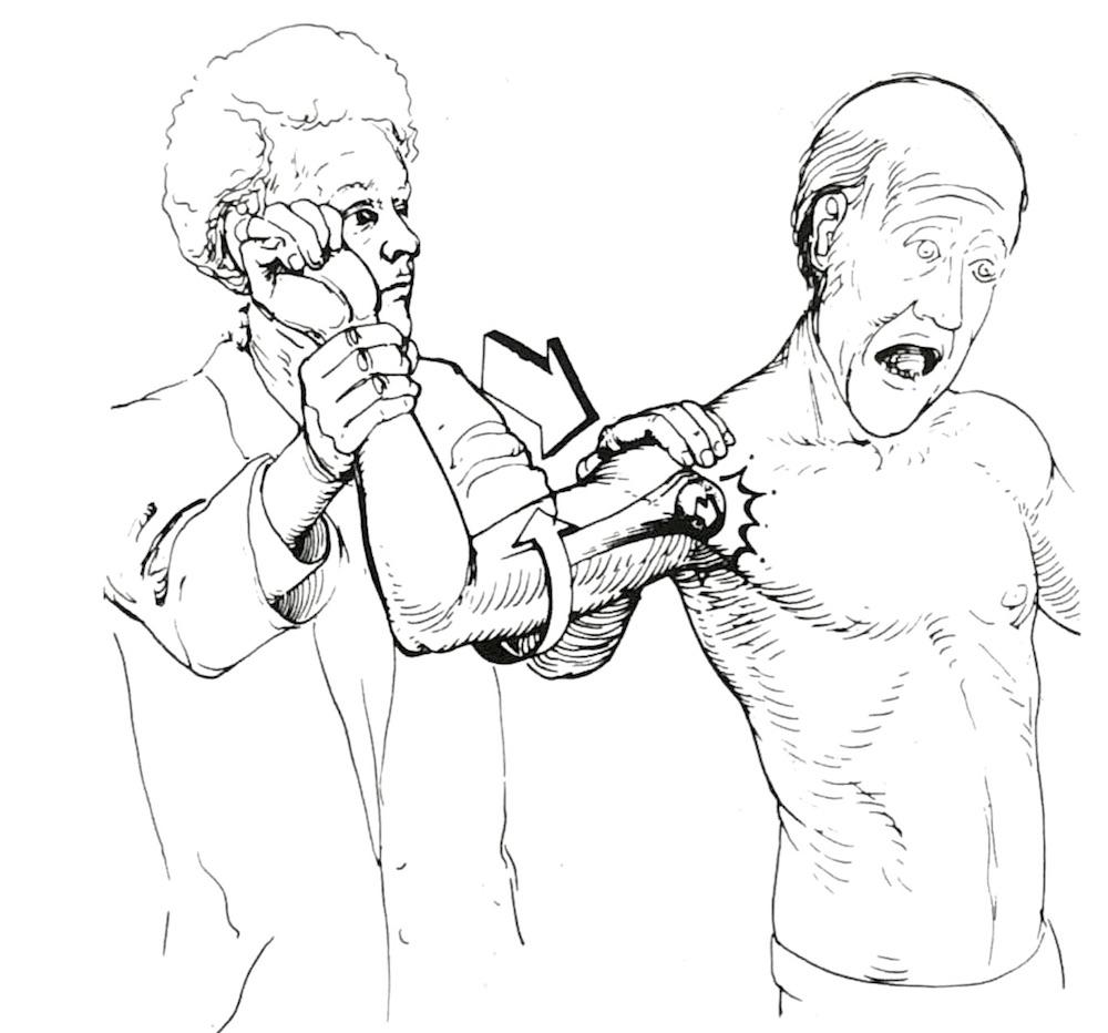 肩関節の脱臼の不安テスト