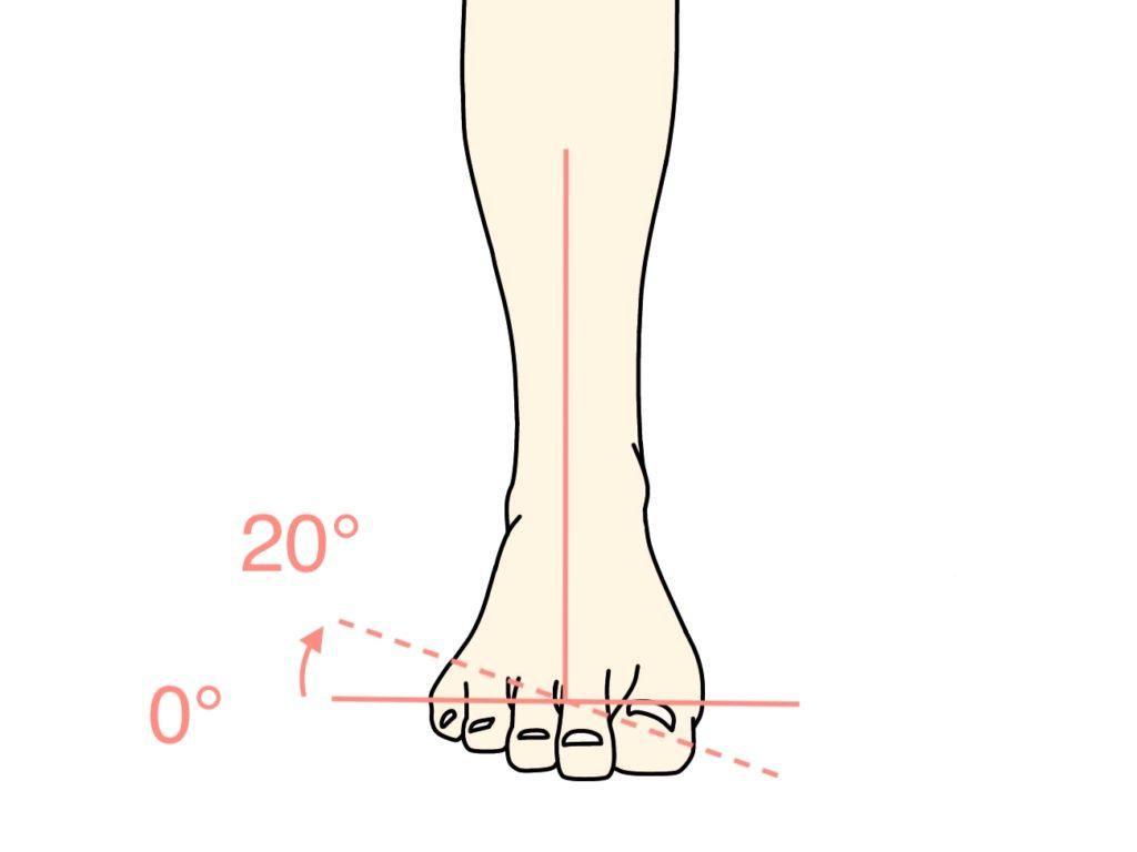 足の底を外側に向ける動作(足の外反)の関節可動域(ROM)