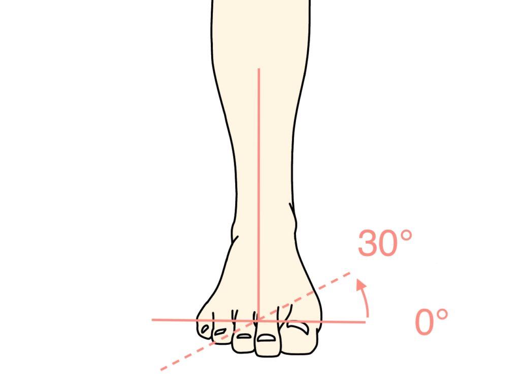 足の底を内側に向ける動作(足の内反)の関節可動域(ROM)